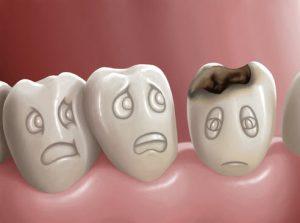 teeth, dentalhealth, smile, dentist, oralhealth